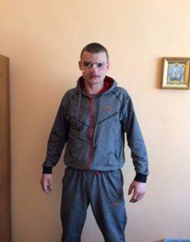 У центрі Василькова озброєний хуліган влаштував дебош